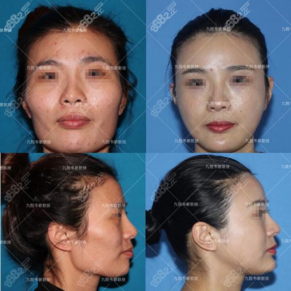 上海九院韦敏颧骨下颌角磨骨案例