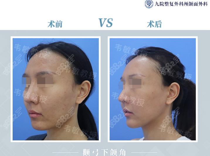 上海九院韦敏颧弓下颌角削骨案例对比图