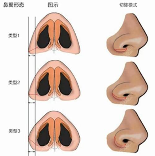 鼻翼缩小切口展示