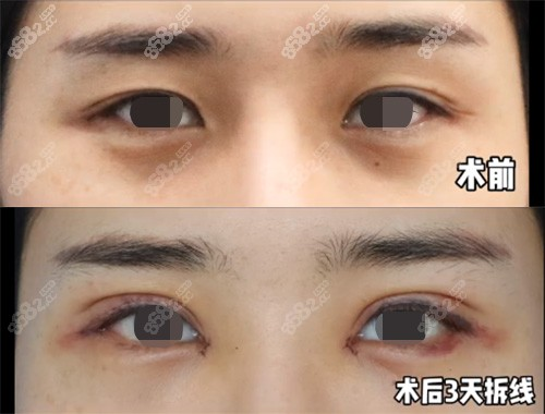 杭州格莱美张霞飞院长双眼皮术后三天