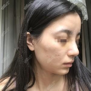 在上海伯思立做鼻综合术后9天