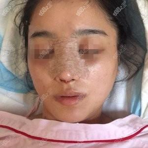 在上海伯思立做鼻综合手术当天