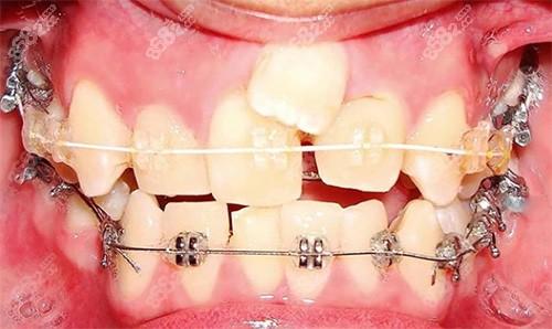 牙齿矫正初期