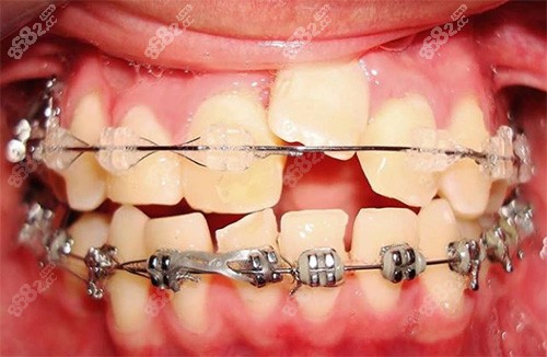上牙缝隙逐渐加大