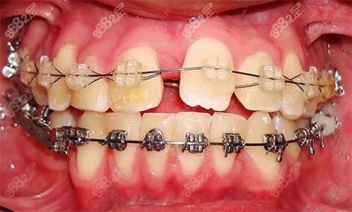 牙齿都戴上了托槽