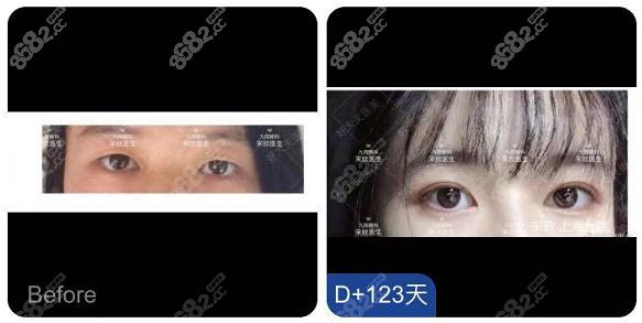 上海九院宋欣医生双眼皮案例