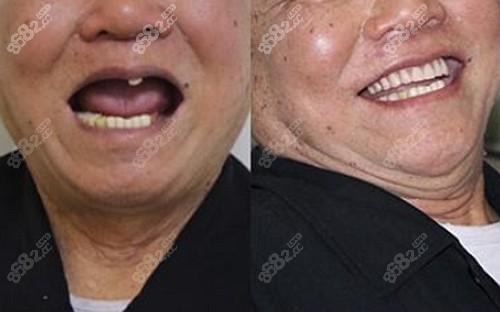 北京中诺种植牙案例