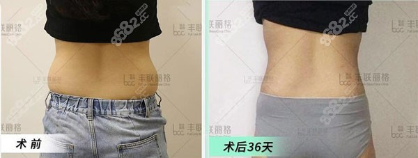 颜医生做显微吸脂术后恢复效果对比