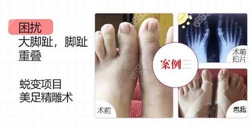 上海馥兰朵大脚骨效果图