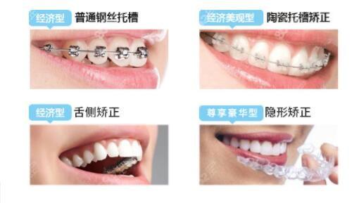 玉林蓝天口腔牙齿矫正价格表